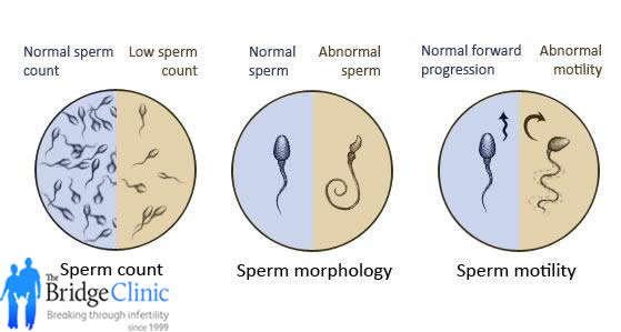 Normal male sperm counts